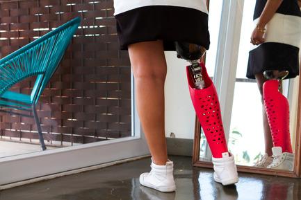 Press kit | 2467-01 - Press release | Confetti Prosthetic Leg Cover - Furf Design Studio - Product - Confetti can become a fashion accessory. - Photo credit: Furf Design Studio